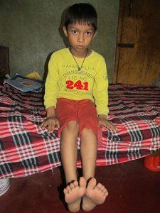 Hosain lifting his foot